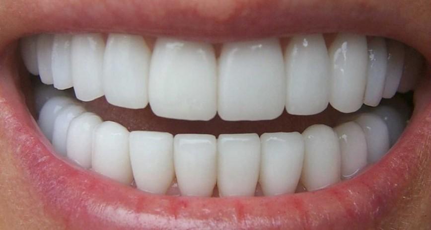 Сколько всего должно быть зубов у человека